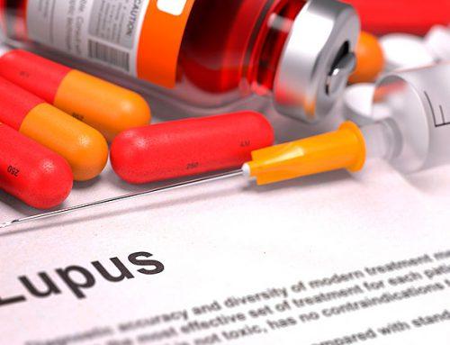 Terapia celular podría complementar tratamiento para Lupus