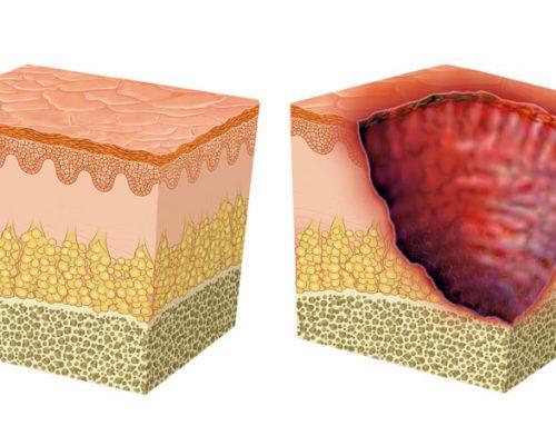 Las desconocidas cifras de las úlceras cutáneas