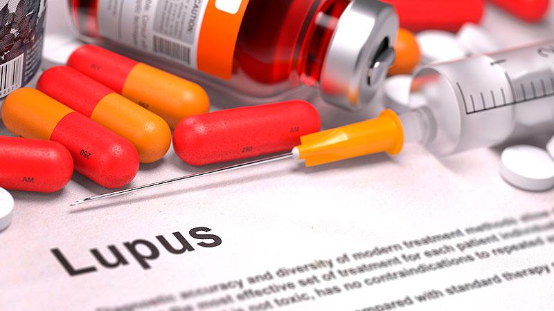 Terapia celular podría complementar tratamiento para Lupus – Regenero